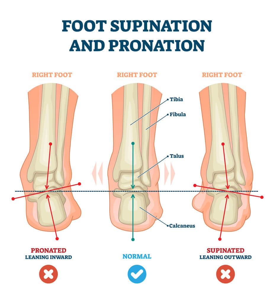 How to identify supination