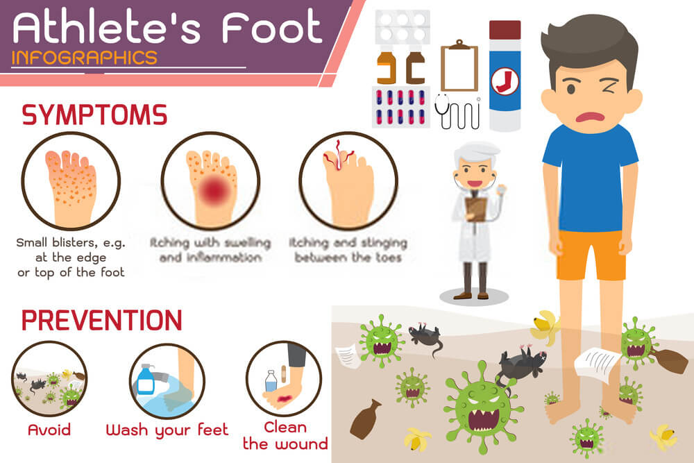 How To Disinfect Shoes From Athlete's Foot forever