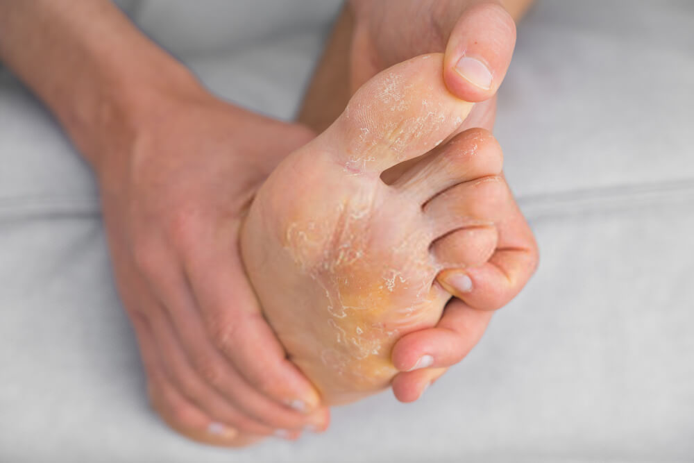 How To Disinfect Shoes From Athlete's Foot